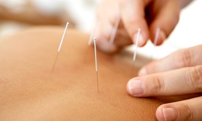 varicoză și acupunctură