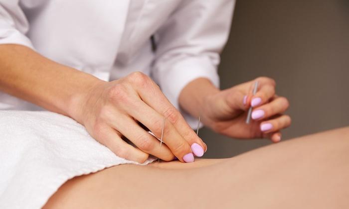 varicoză în acupunctură